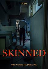 Skinned movie cover